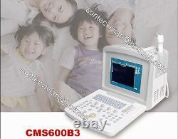 CMS600B3 desktop Ultrasound Scanner Machine + 3.5 Convex probe, high quality + CE