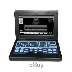 CMS600P2, Portable laptop machine Digital Ultrasound scanner, 3.5 Convex probe, US