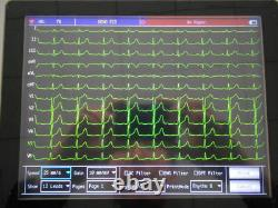 Contec Digital 12-Channel/Lead ECG EKG machine Electrocardiograph Sync Software