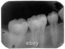 Dental Digital X-Ray Machine Wireless X-Ray Image System Red with Metal Box