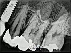 #Dental Mobile #Xray #Generator #Machine x-ray Unit Device Handheld Wireless