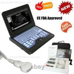 USA Ultrasound Scanner Laptop Machine ultrasonic 3.5Mhz Convex Probe Obstetrics