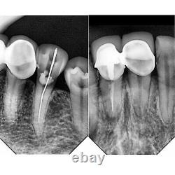 Woodpecker I Sensor H2 #2 Dental Imaging System RVG Digital X-Ray Sensor Machine