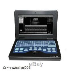 Cms600p2 Echographe Numérique Machine Portable LCD Avec 7.5mhz Sonde Linéaire