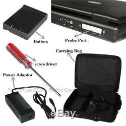 Cms600p2, Ordinateur Portable Portable Scanner Numérique Par Ultrasons, 3,5 Sonde Convex, États-unis
