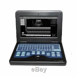 Contec Cms600p2 Portable Portable Machine À Ultrasons Scanner Convex Probe États-unis