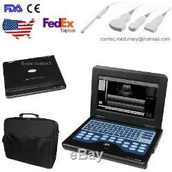 Contec Portable Echographe Portable Machine Numérique En Option Sondes Gratuit