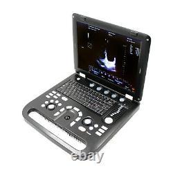 Couleur Doppler Ultrasound Scanner Portable Ordinateur Portable Couleur Convex Diagnostique