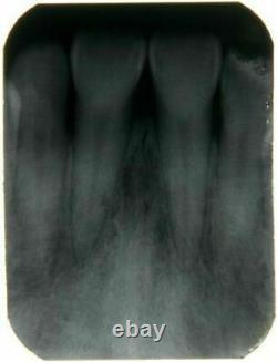 Dental X Ray Portable Mobile Film Imaging Machine Digital Low Dose System Blx-5