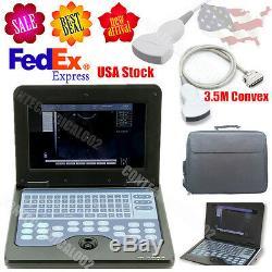 Machine À Ultrasons Portable Numérique Scanner Portable Avec 3.5mhz Convex Probe, États-unis