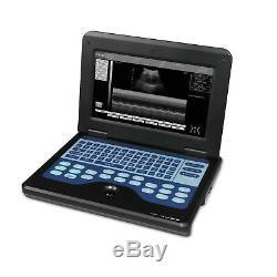 Machine Portable Portable Scanner Numérique Par Ultrasons, 3.5 Sonde Convex, États-unis Fedex
