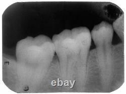 Nouveau Dental Handheld Digital X-ray Unit Surgical Mobile Machine Lab Equipment Ce