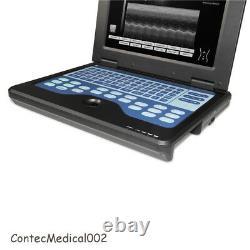 Ordinateur Portable Portable Scanner Numérique À Ultrasons, 3 Sondes, Convex/linear/cardiac