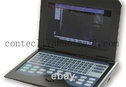 Scanner Portable Portable Numérique Pour Ordinateur Portable Avec Sonde Convex 3,5 Mhz, États-unis