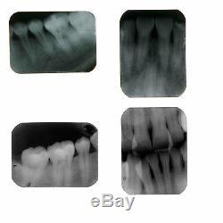 Unité Dentaire Mobile X-ray Machine De Radiographie Numérique À Faible Dose Système D'imagerie Us Stock